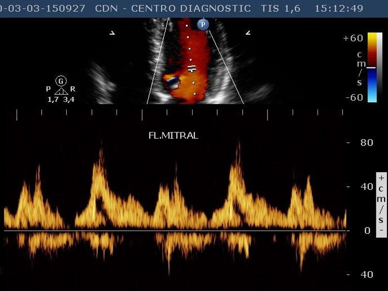 A Importância do Ecocardiograma para o Cardiologista na Prática Clínica